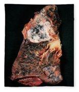 Lung Cancer Fleece Blanket