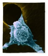Metastasis Fleece Blanket