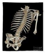 Skeletal Reconstruction Fleece Blanket