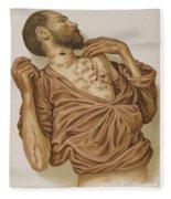 Suicide Through Stabbing 1898 Fleece Blanket