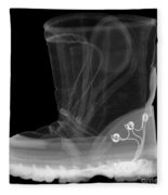 X-ray Of A Childs Light-up Boot Fleece Blanket