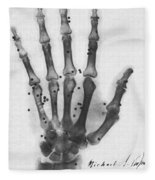 X-ray Of A Hand With Buckshot Fleece Blanket