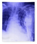 X-ray Of A Pacemaker Fleece Blanket