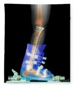 X-ray Of Broken Bones In Ski Boot Fleece Blanket