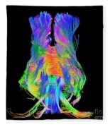 Brain Fiber Tracts, Dti Scan Fleece Blanket