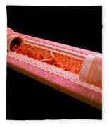 Anatomy Of A Vein Fleece Blanket