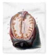 Brain, Anatomical Illustration, 1802 Fleece Blanket