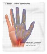 Carpal Tunnel Syndrome, Illustration Fleece Blanket