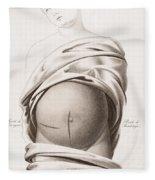 Cesarean Section, Incisions Fleece Blanket