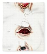 Eye Inflammations, Historical Fleece Blanket