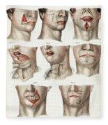 Facial Surgery, Illustration, 1846 Fleece Blanket