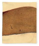 Fatty Liver, Pathology, Illustration Fleece Blanket
