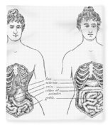 Medical Crimes Of The Corset, 1908 Fleece Blanket
