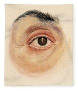 Melanoma Of Iris, Medical Illustration Fleece Blanket