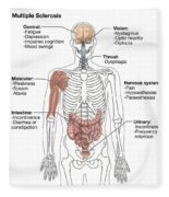 Multiple Sclerosis Symptoms Fleece Blanket