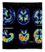 Normal And Alzheimer Brains, Pet Scans Fleece Blanket