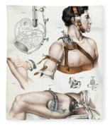 Operative Surgery, Illustration, 1846 Fleece Blanket