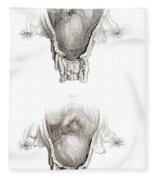 Placenta Previa, Illustration Fleece Blanket