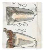 Prosthetic Noses, Ambroise Pare, 1561 Fleece Blanket