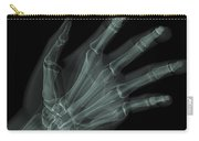Bones Of The Hand Carry-all Pouch