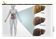 Stages Of Liver Disease Carry-all Pouch