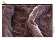 Surface Of Human Vagina Carry-all Pouch