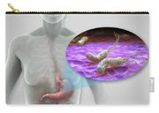 Helicobacter Pylori Carry-all Pouch