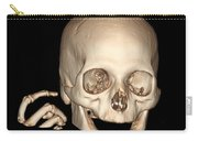 3d Ct Reconstruction Of Head And Hand Carry-all Pouch