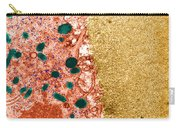 Mature Oocyte, Tem Carry-all Pouch