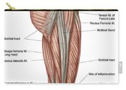 Anatomy Of Human Thigh Muscles Carry-all Pouch