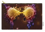 Cancer Cell Division Carry-all Pouch by SPL and Photo Researchers
