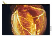 Colored Arteriogram Of Arteries Of Healthy Heart Carry-all Pouch
