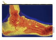Flat Foot X-ray Carry-all Pouch