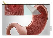 Gastric Ulcer Carry-all Pouch