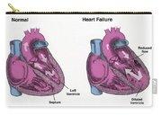 Healthy Heart Vs. Heart Failure Carry-all Pouch