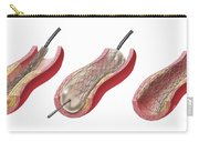 Insertion Of Stent Into Atherosclerotic Carry-all Pouch