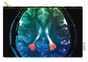 Mri Of Heterotopic Gray Matter Carry-all Pouch