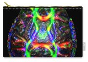 Normal Brain Diffusion Tractography Carry-all Pouch
