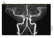 Normal Intracranial Mra Carry-all Pouch