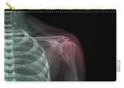 Shoulder Injury Carry-all Pouch