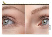 Womans Eye With And Without Wrinkles Carry-all Pouch