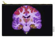 Brain Areas Affected By Alzheimers Carry-all Pouch
