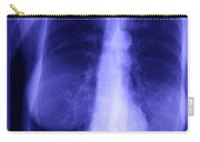 Chest X-ray Of Female Carry-all Pouch