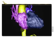 Color Enhanced 3d Cta Of Heart Carry-all Pouch
