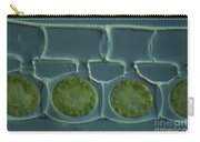 Conjugation In Spirogyra Algae Lm Carry-all Pouch