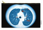 Emphysema On Ct Chest Carry-all Pouch