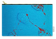 Infectious Prion Protein Carry-all Pouch by Science Source