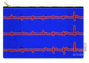 Normal Ecg Carry-all Pouch