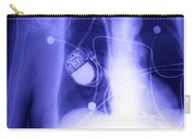 Pacemaker Carry-all Pouch