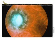 Retina Infected By Syphilis Carry-all Pouch